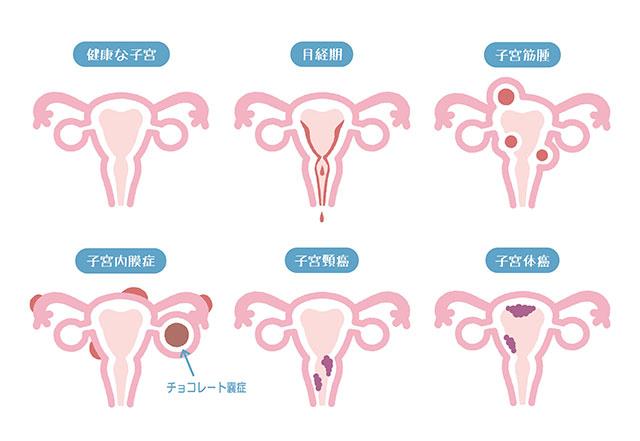 後 症状 子宮 屈